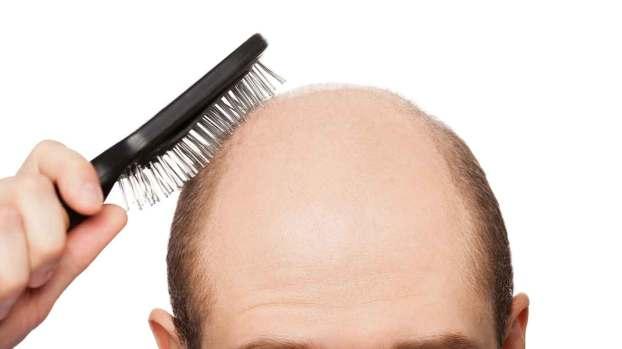 Cara Mengatasi Rambut Rontok pada Pria Agar Tidak Botak  c86de0a670